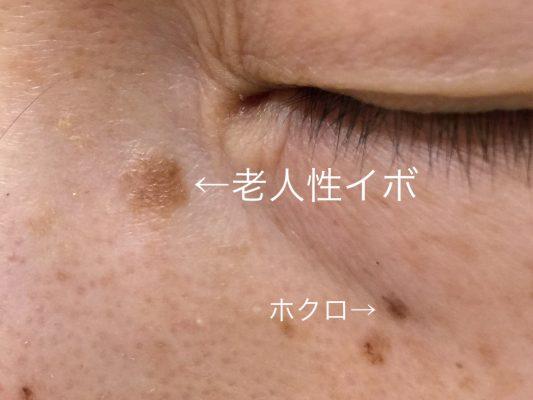 脂漏性角化症(老人性イボ)の写真