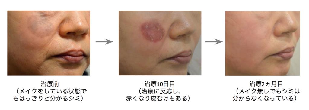 シミ治療の経過