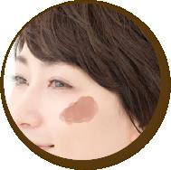 肝斑(顔全体のくすみ)