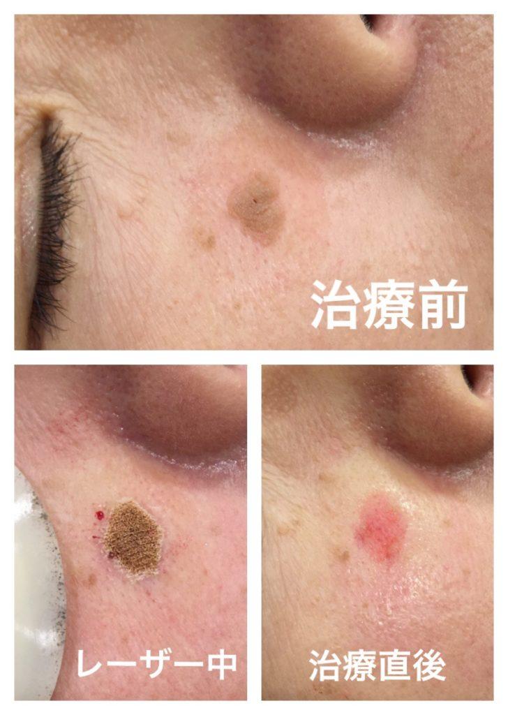 炭酸ガスレーザー治療後の経過写真
