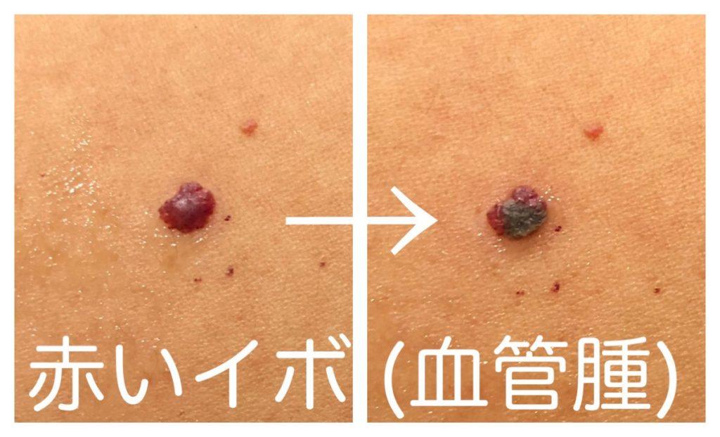 血管腫レーザーで赤イボ治療