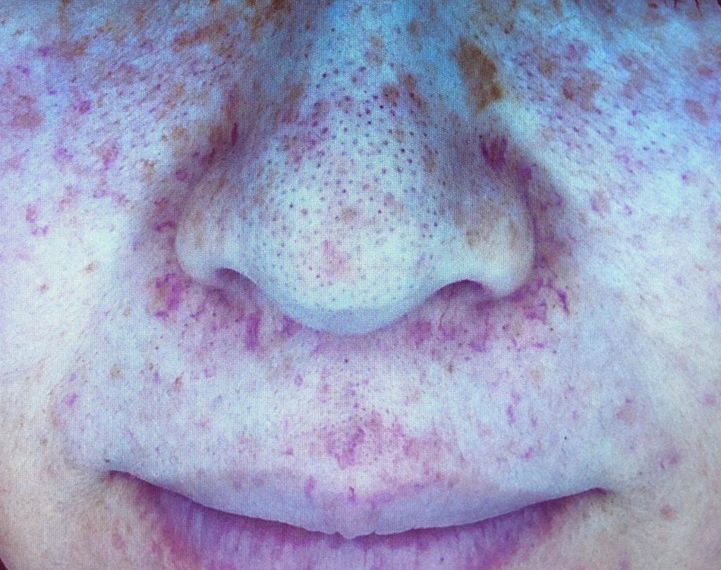 鼻の周りの毛細血管拡