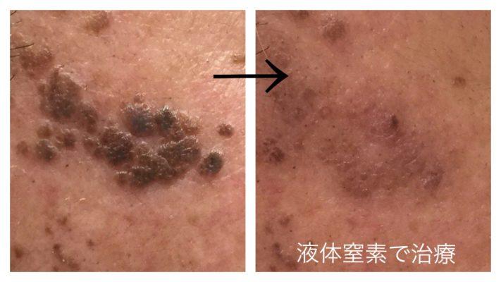 液体窒素での顔イボ治療